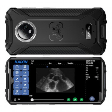 Mobilní telefon Oukitel WP8 Pro vč. držáku k ultrazvukovému scanneru W1, bezdrátový, konvexní sonda
